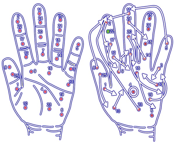 An altered map of the hand following stroke