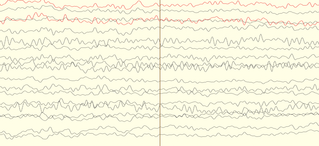 An example of a raw EEG