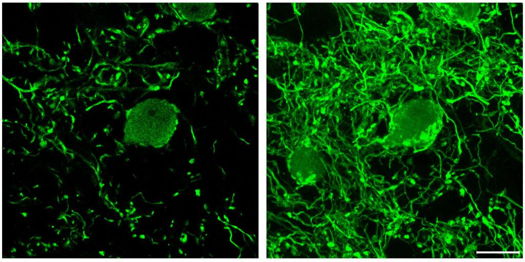 Globular bushy cells illuminated by a fluorescent stain