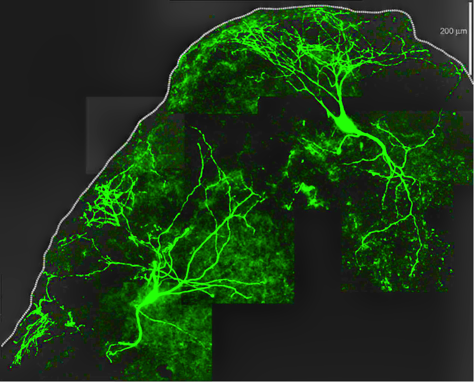 Giant neurons illuminated by a fluorescent stain